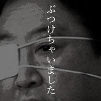 1月16日のできごと(何の日) 野田首相、眼帯